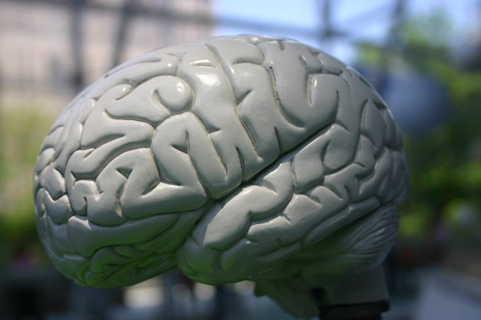 UF researchers awarded grants for brain aneurysm research